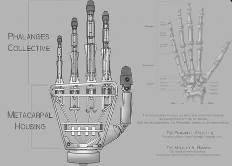 prothèse main 3D