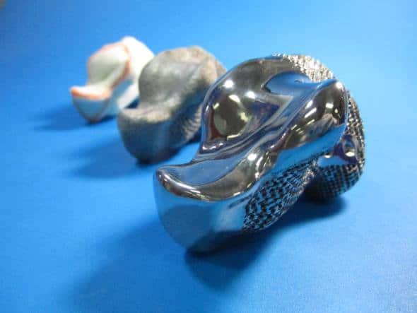 implant 3D titane