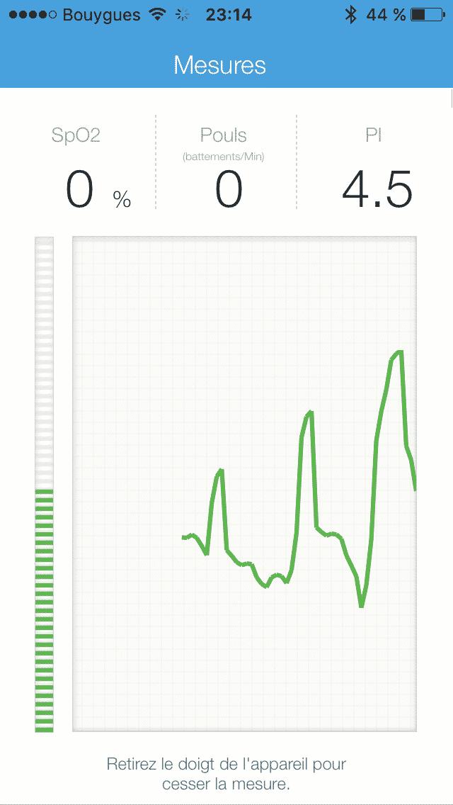 iHealth Oxymètre PO3 graphique