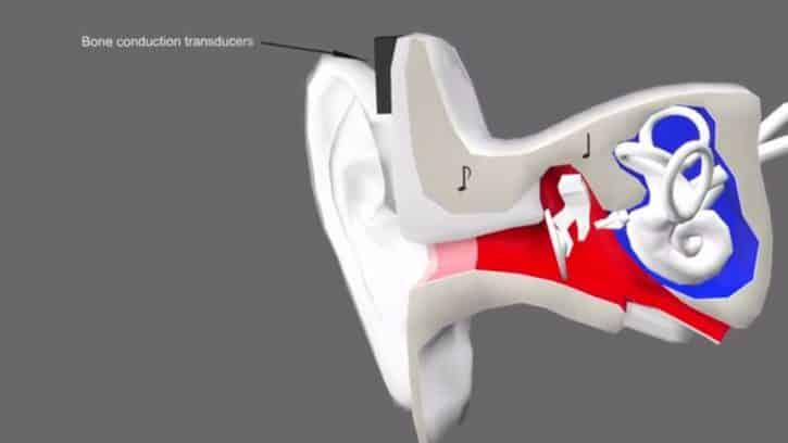 S-tone conduction osseuse