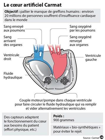 Cœur Carmat