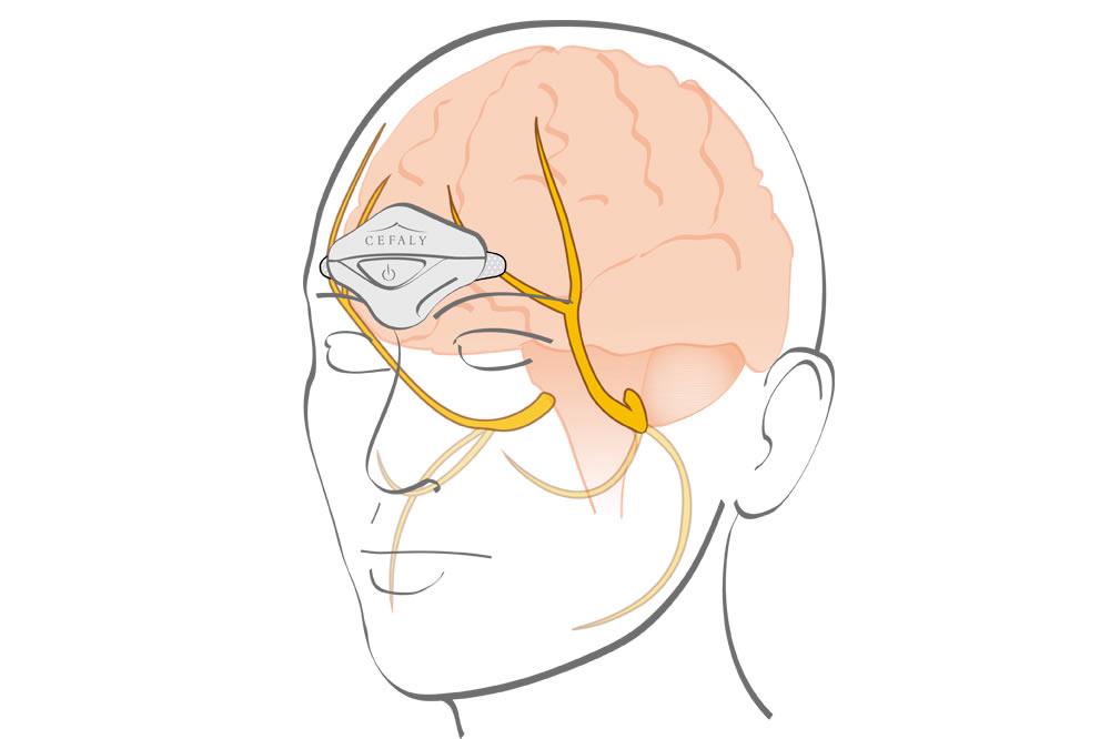 Cefaly traitement prévention migraine