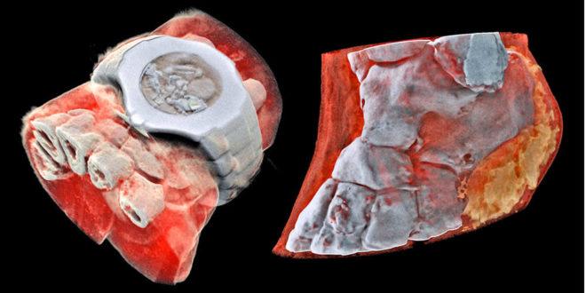 Première radiographie en 3D et couleur d'un corps humain