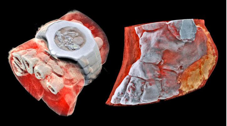 Radiographie 3D couleur CERN