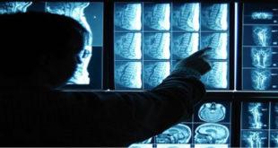 Cancer intelligence artificielle immunothérapie