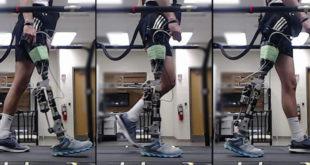Prothèse IA