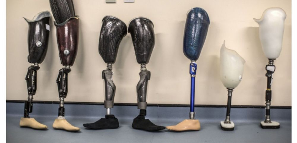 Prothèse intelligence artificielle