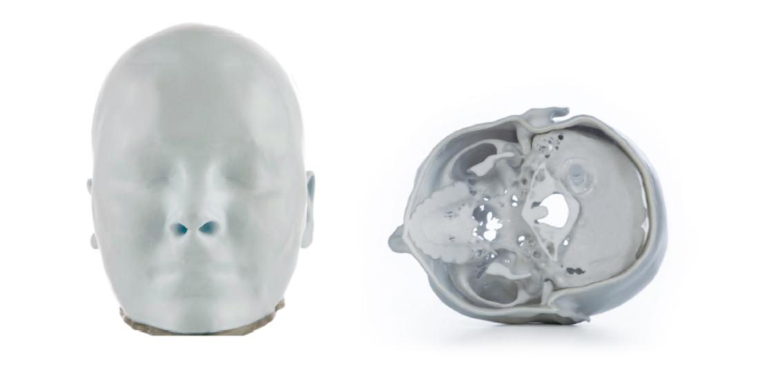 Une tête réalisée par impression 3D pour aider les médecins à s'exercer pour le traitement d'une tumeur au cerveau
