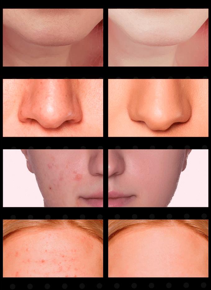 résultats de l'aspirateur connecté porfee sur la peau